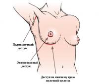 Найти как увеличивают грудь